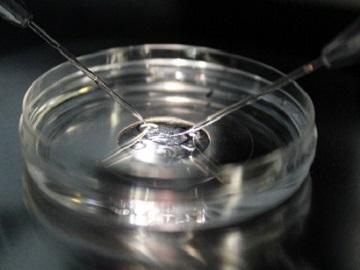 Técnica ROPA-Recepción de óvulos de la pareja